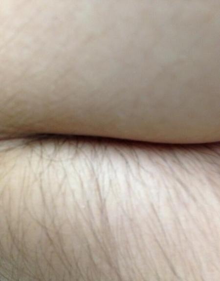 ¿codo o culo a medio depilar?